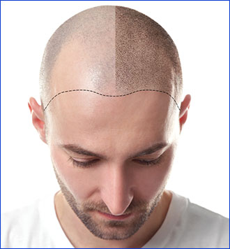 Permanent Cosmetic Makeup and Scalp Micropigmentation